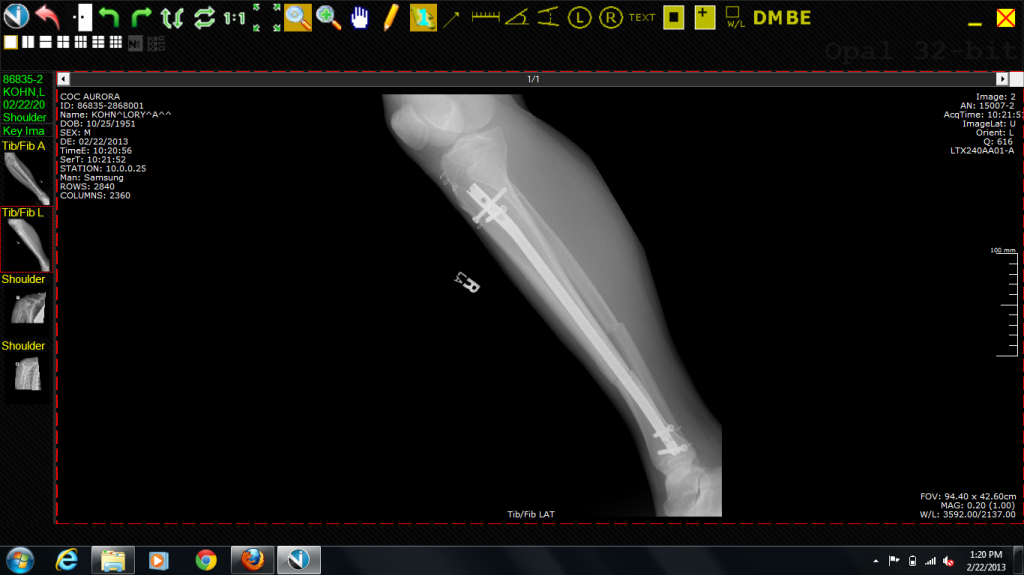 Lory's repaired tib fib compound fracture.