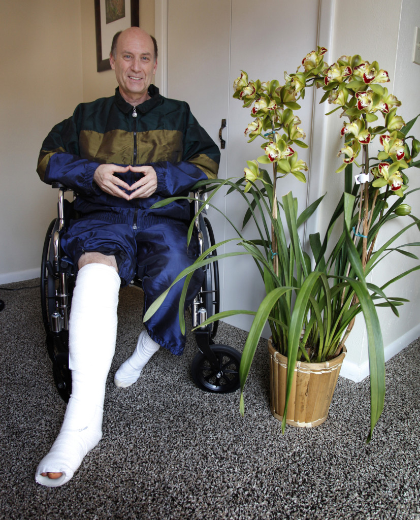Poteconomist Lory Kohn in cast with broken leg.